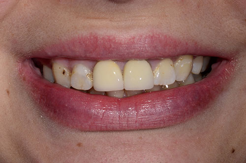 Closeup of Mason, OH client's smile before dental treatment.