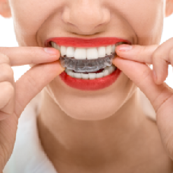 <br>Invisalign&reg; at Fox Dental Excellence
