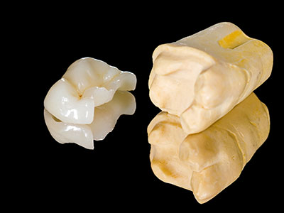 Dental inlays and onlays by Fox Dental Excellence in Mason, OH.